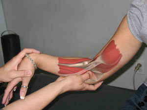 A woman's arm with a graphic of the muscles inside of her arm